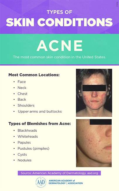 Acne Diagnosis And Treatment Dermatology Surgery Center Niceville Fl Andalusia Al